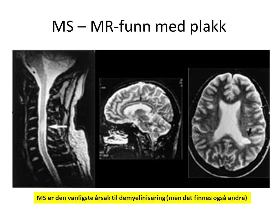 MS – MR-funn med plakk MS er den vanligste årsak til demyelinisering (men det finnes også andre)