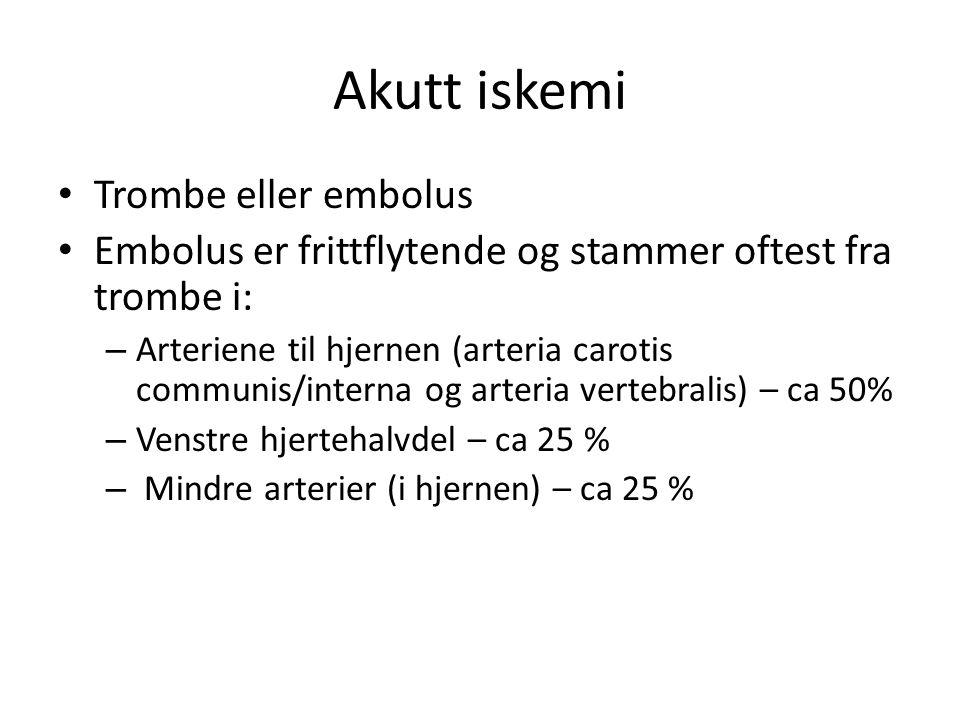 Akutt iskemi Trombe eller embolus