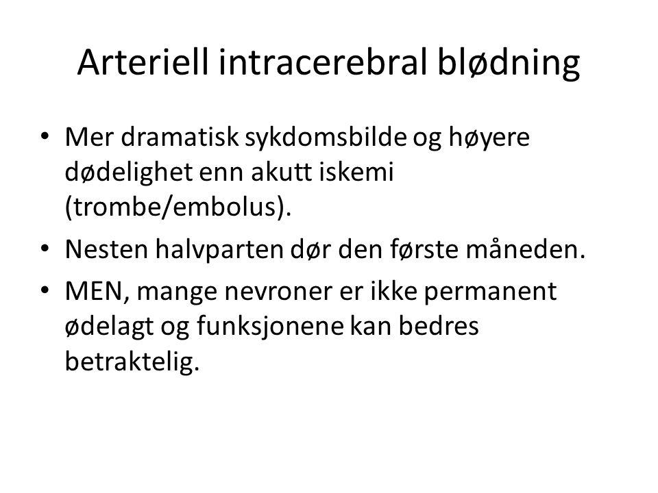 Arteriell intracerebral blødning