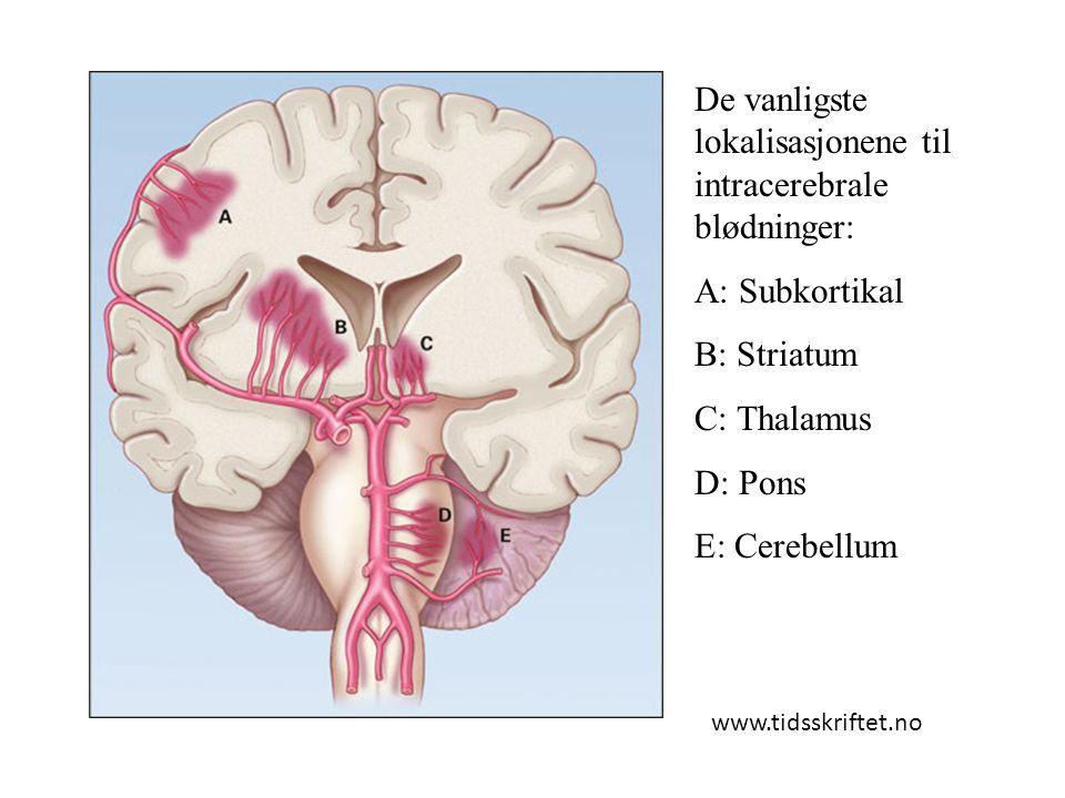 De vanligste lokalisasjonene til intracerebrale blødninger: