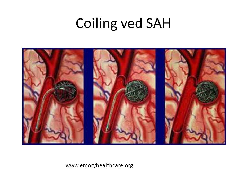 Coiling ved SAH www.emoryhealthcare.org