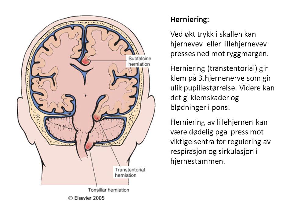 Herniering: Ved økt trykk i skallen kan hjernevev eller lillehjernevev presses ned mot ryggmargen.