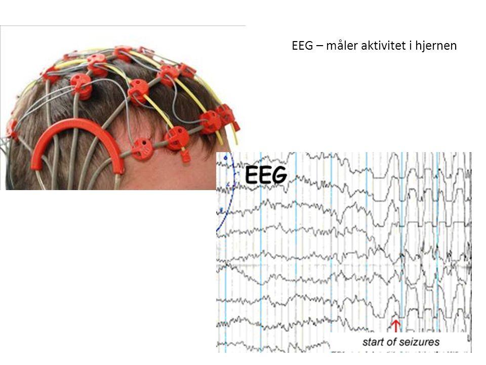 EEG – måler aktivitet i hjernen