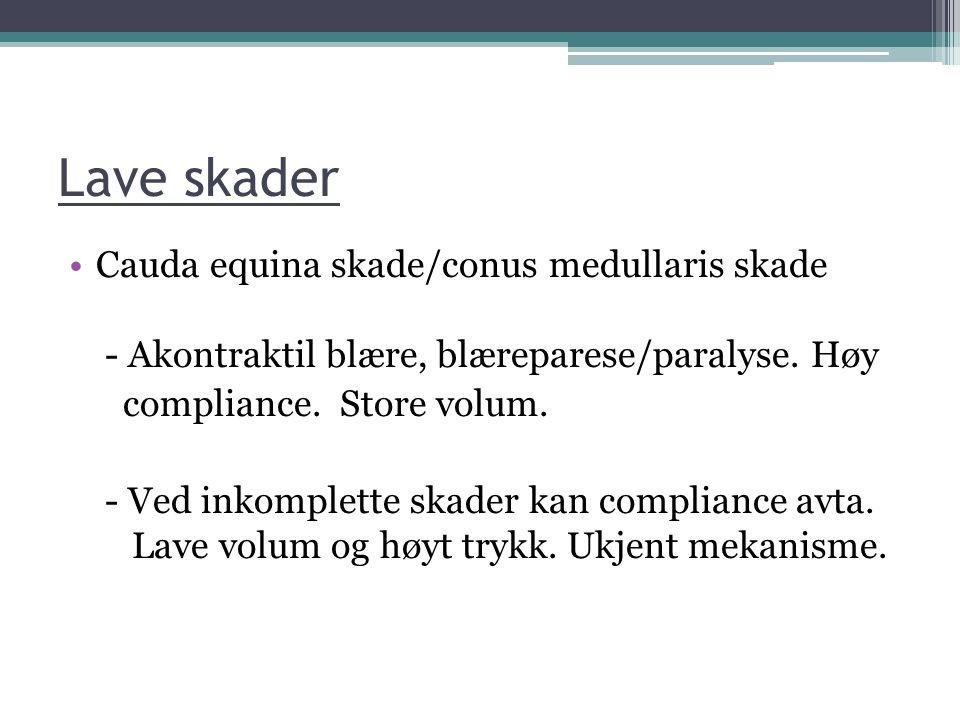 Lave skader Cauda equina skade/conus medullaris skade - Akontraktil blære, blæreparese/paralyse. Høy.