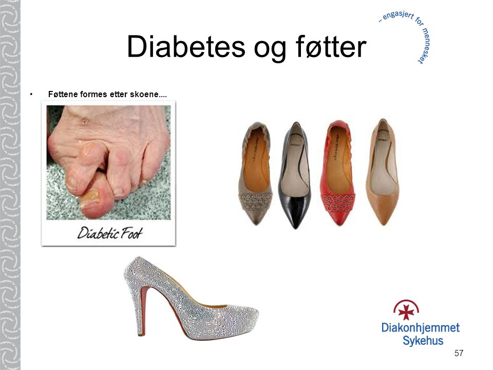 Diabetes og føtter Føttene formes etter skoene....