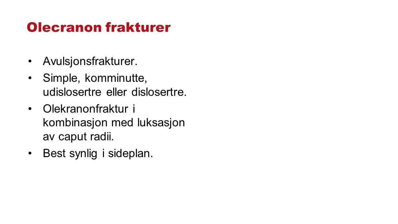 Olecranon frakturer Avulsjonsfrakturer.