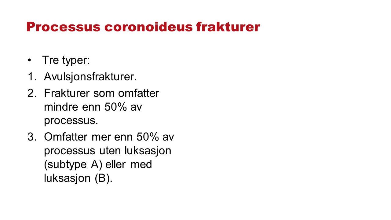Processus coronoideus frakturer