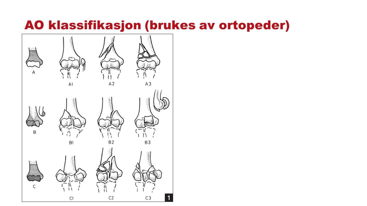 AO klassifikasjon (brukes av ortopeder)
