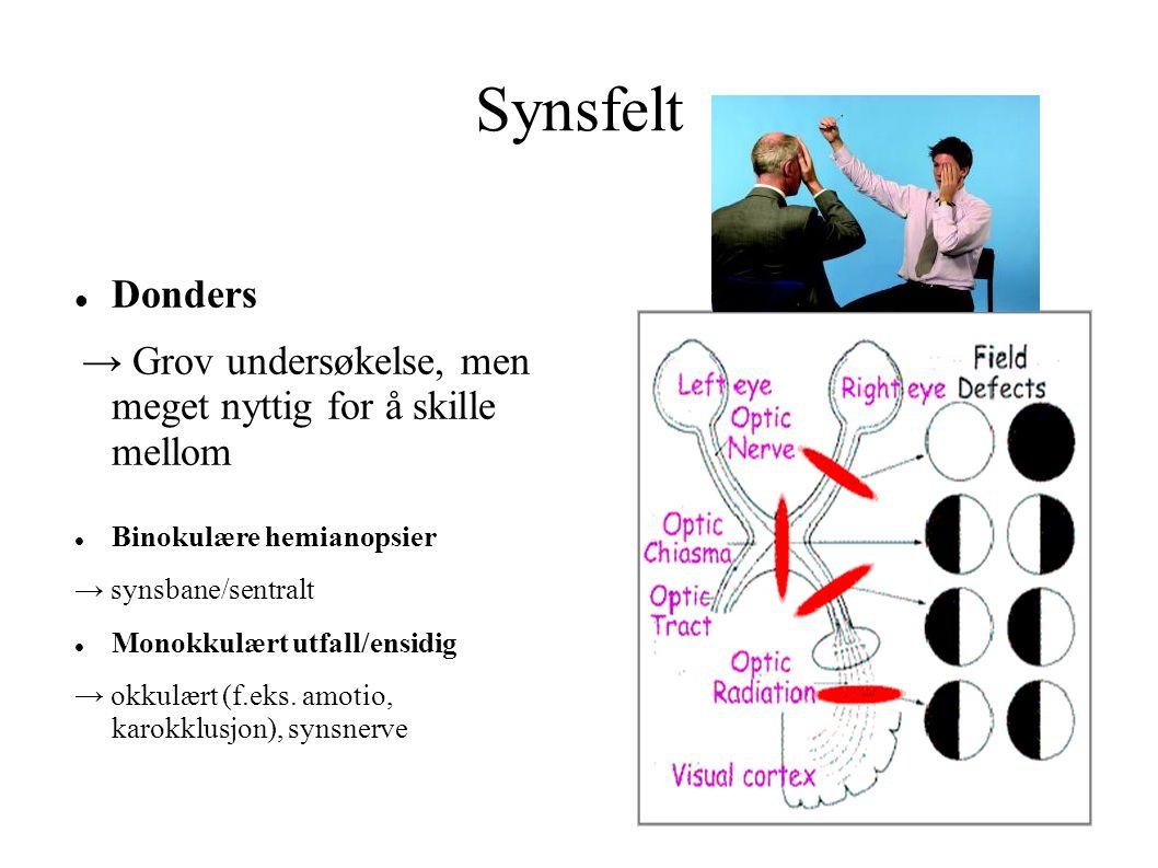 Synsfelt Donders Binokulære hemianopsier → synsbane/sentralt