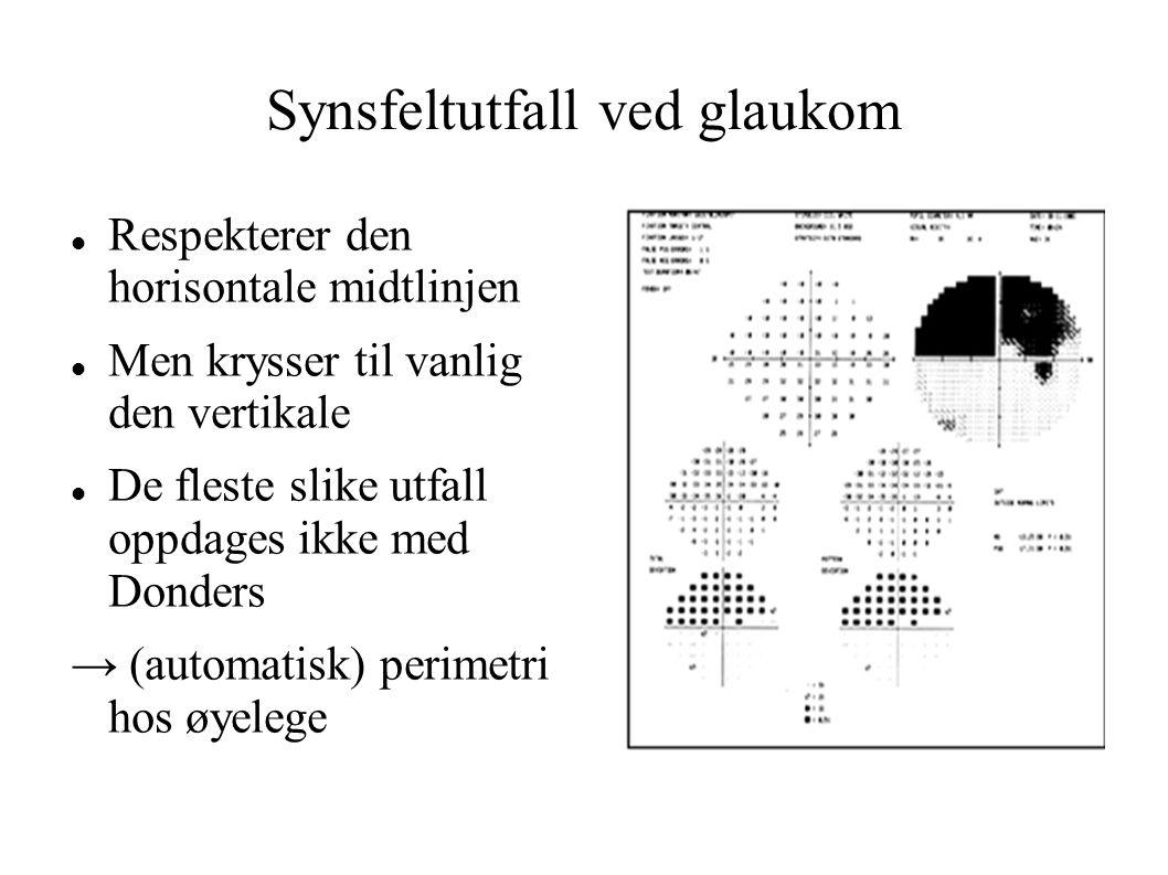 Synsfeltutfall ved glaukom