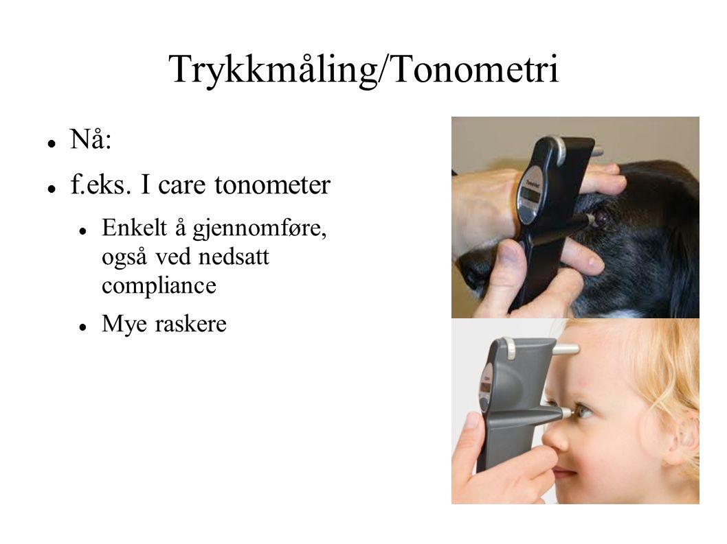 Trykkmåling/Tonometri
