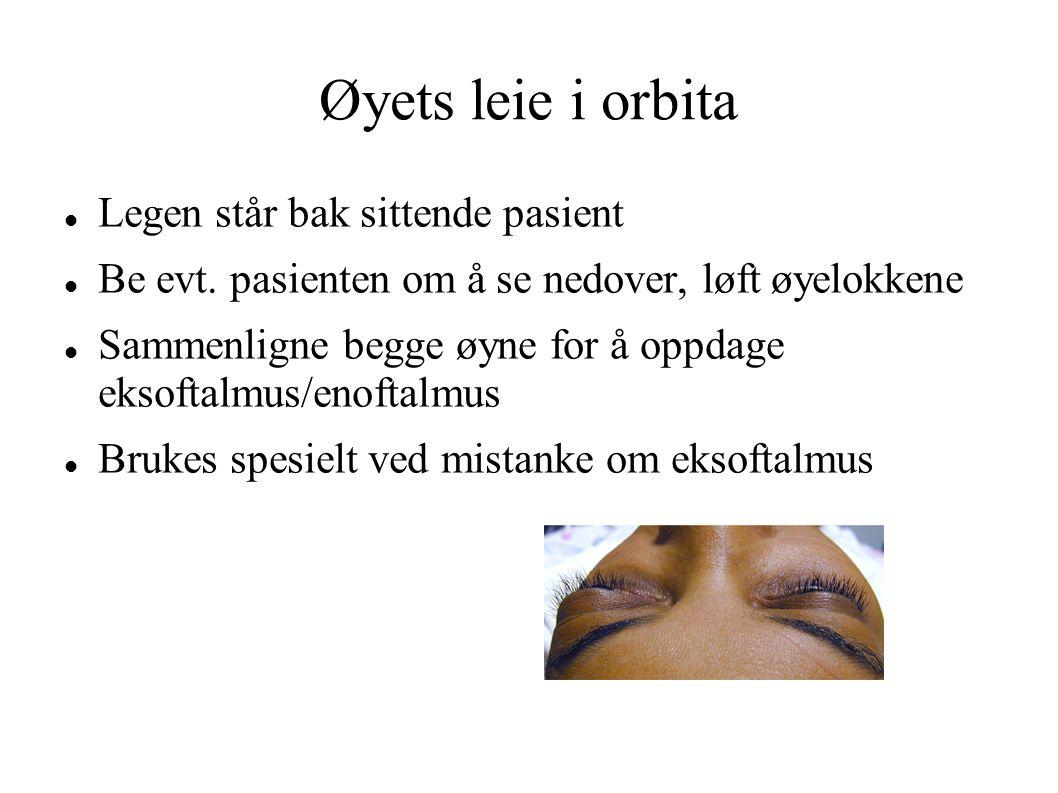 Øyets leie i orbita Legen står bak sittende pasient