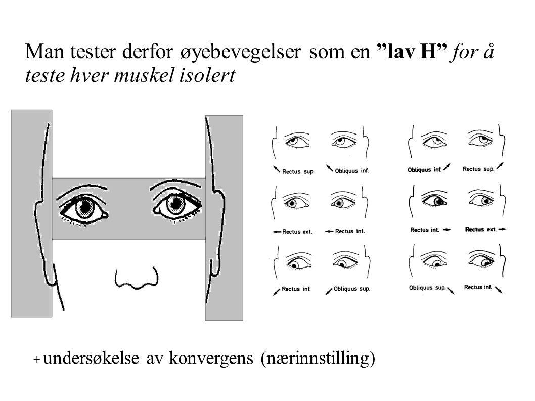 Man tester derfor øyebevegelser som en lav H for å teste hver muskel isolert