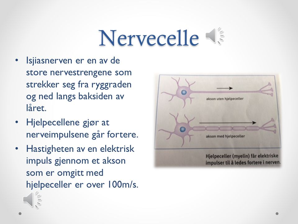 Nervecelle Isjiasnerven er en av de store nervestrengene som strekker seg fra ryggraden og ned langs baksiden av låret.
