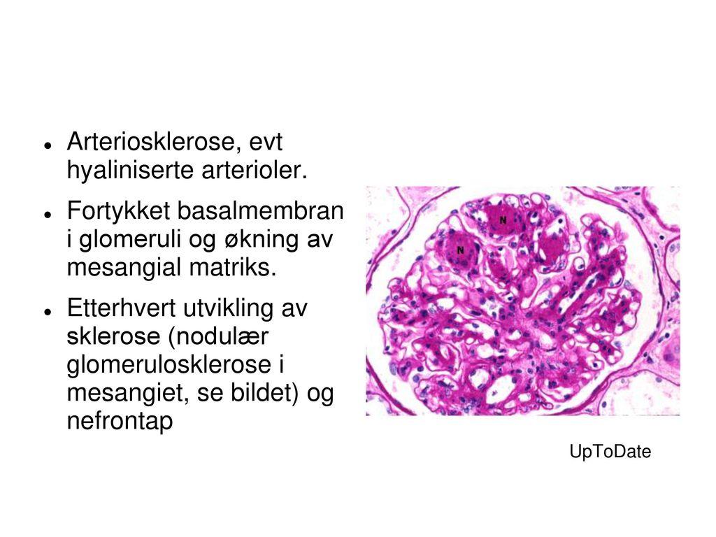 Arteriosklerose, evt hyaliniserte arterioler.
