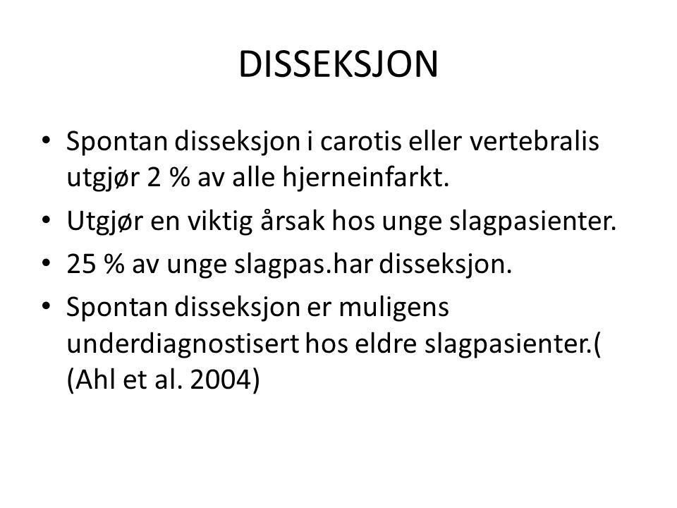 DISSEKSJON Spontan disseksjon i carotis eller vertebralis utgjør 2 % av alle hjerneinfarkt. Utgjør en viktig årsak hos unge slagpasienter.