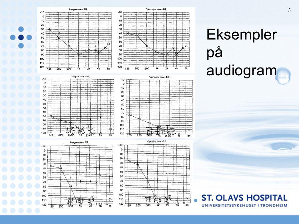 Eksempler på audiogram