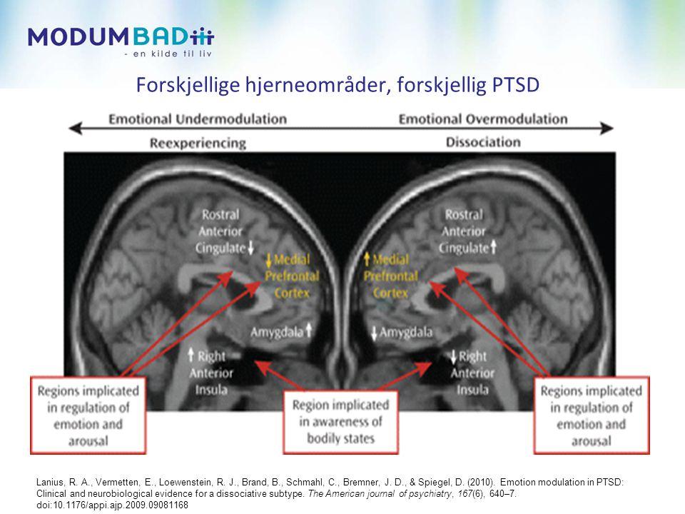 Forskjellige hjerneområder, forskjellig PTSD