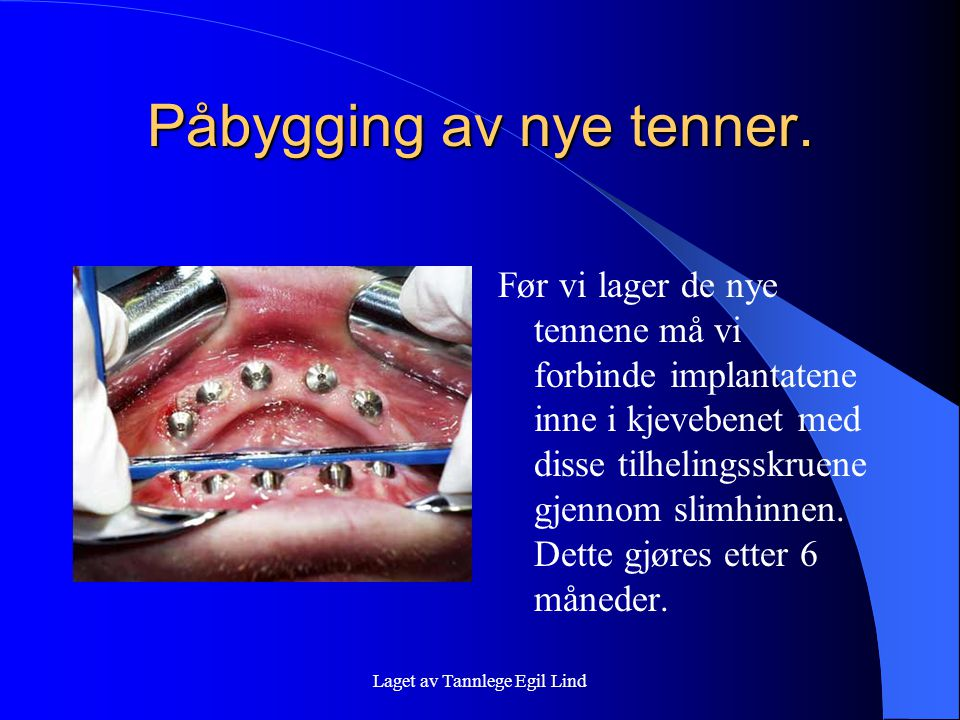 Påbygging av nye tenner.
