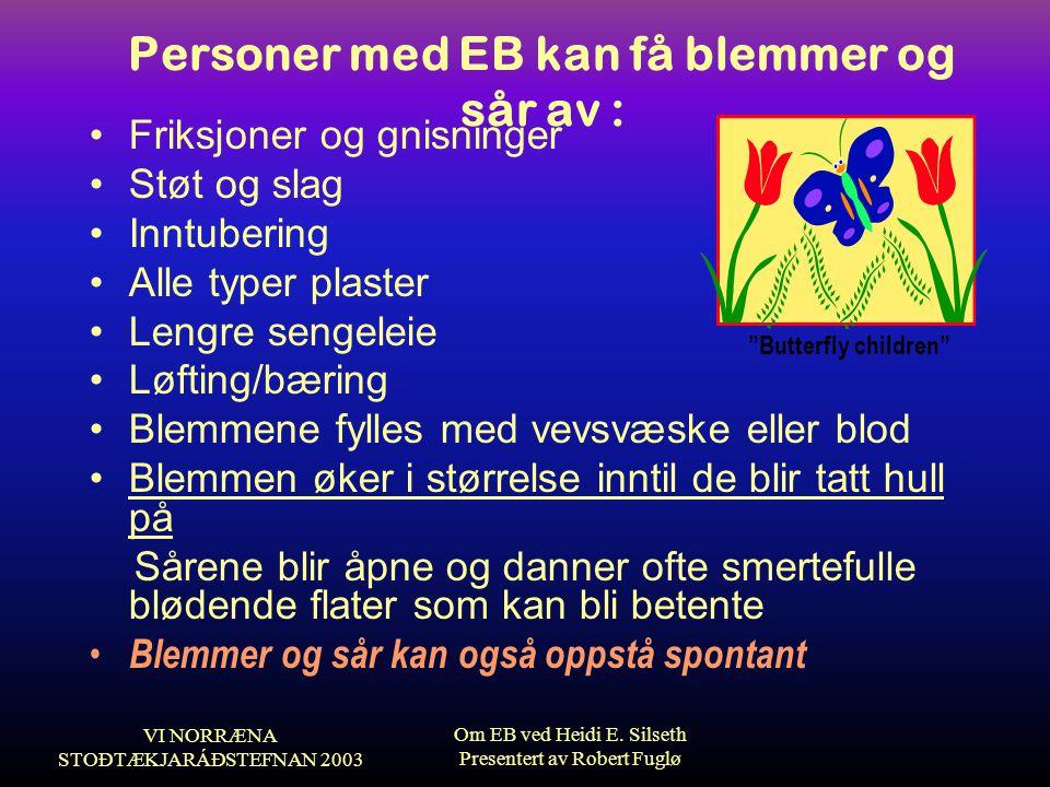 Personer med EB kan få blemmer og sår av :