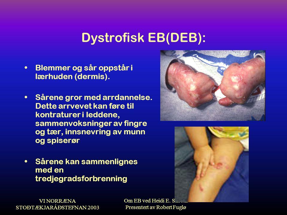 Dystrofisk EB(DEB): Blemmer og sår oppstår i lærhuden (dermis).