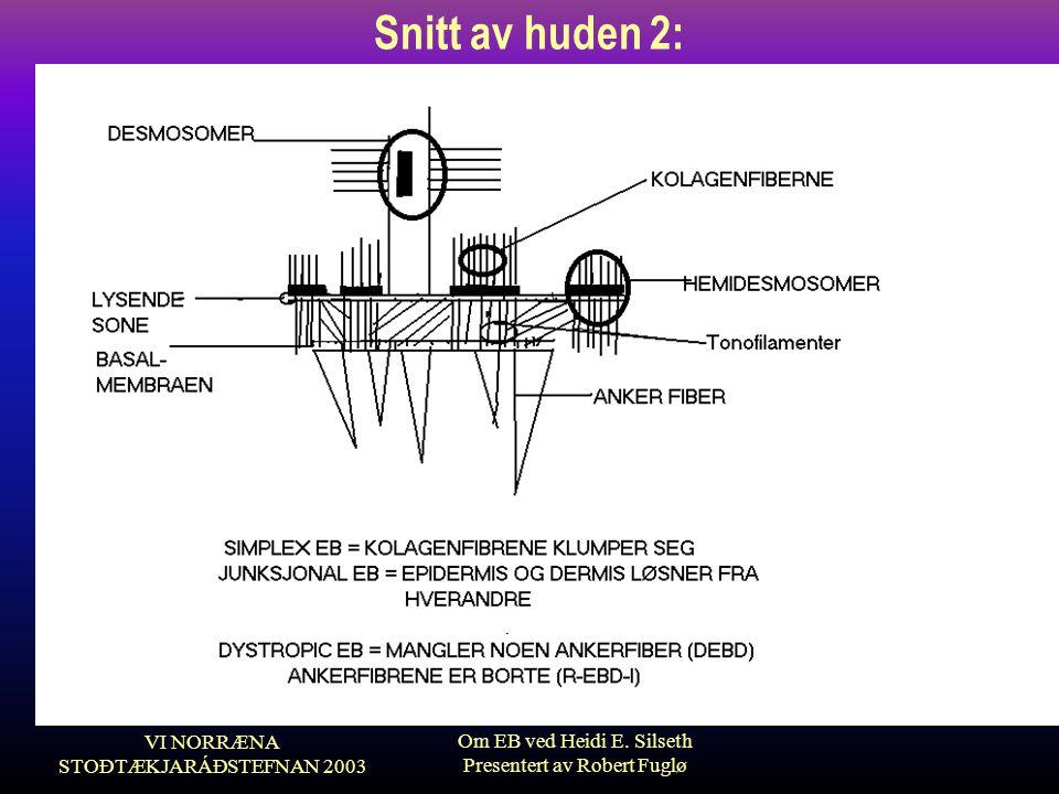Snitt av huden 2: VI NORRÆNA STOÐTÆKJARÁÐSTEFNAN 2003