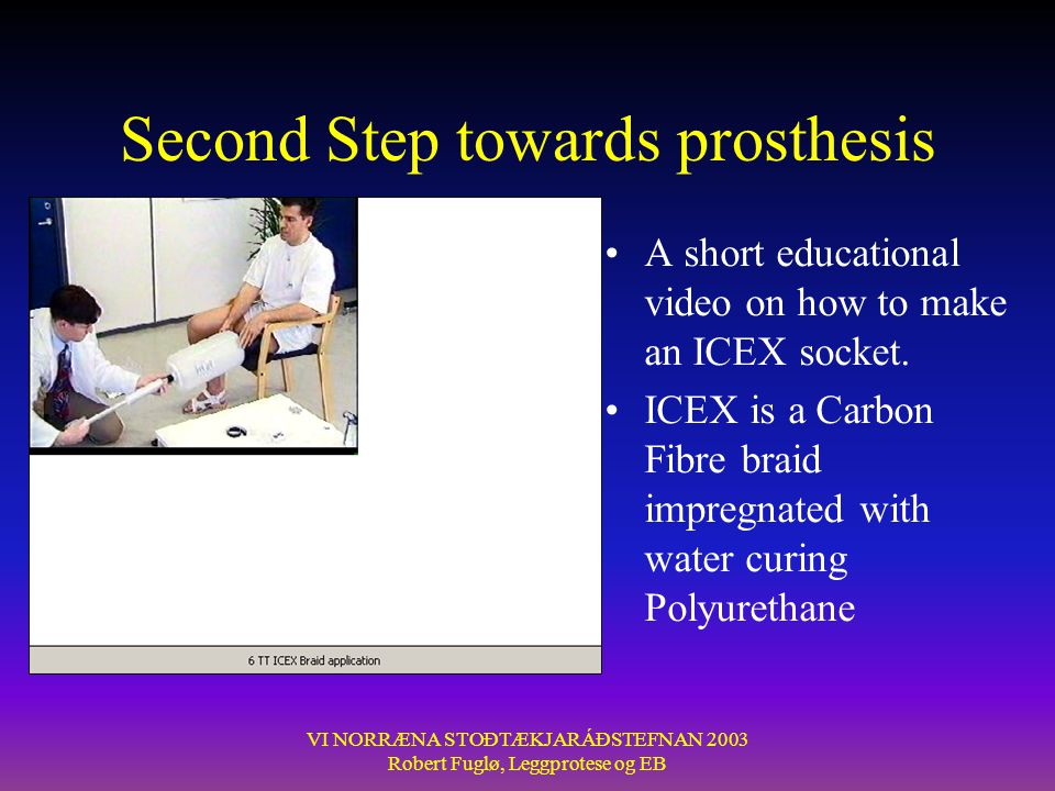 Second Step towards prosthesis