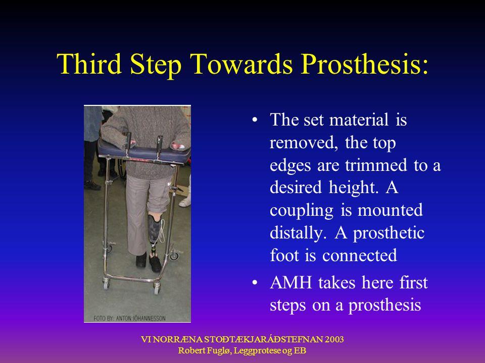 Third Step Towards Prosthesis: