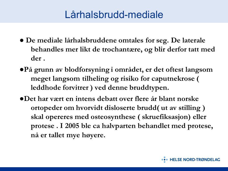 Lårhalsbrudd-mediale