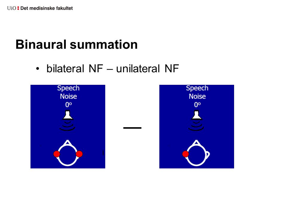 Binaural summation bilateral NF – unilateral NF