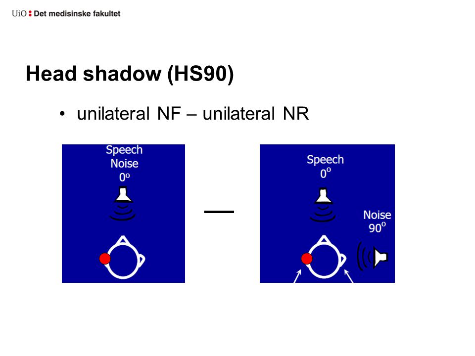 Head shadow (HS90) unilateral NF – unilateral NR