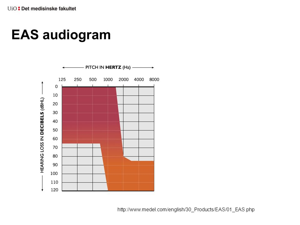 EAS audiogram http://www.medel.com/english/30_Products/EAS/01_EAS.php