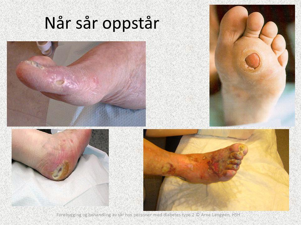 Når sår oppstår Forebygging og behandling av sår hos personer med diabetes type 2 © Arne Langøen, HSH.