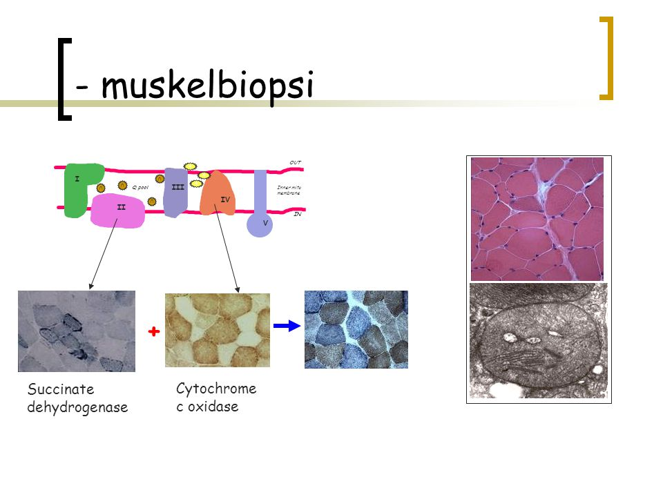 - muskelbiopsi + Succinate Cytochrome dehydrogenase c oxidase I III IV