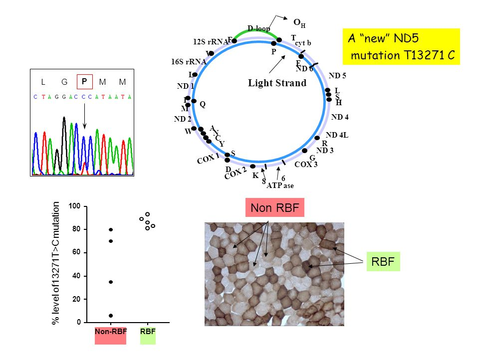 A new ND5 mutation T13271 C Non RBF RBF Light Strand OH