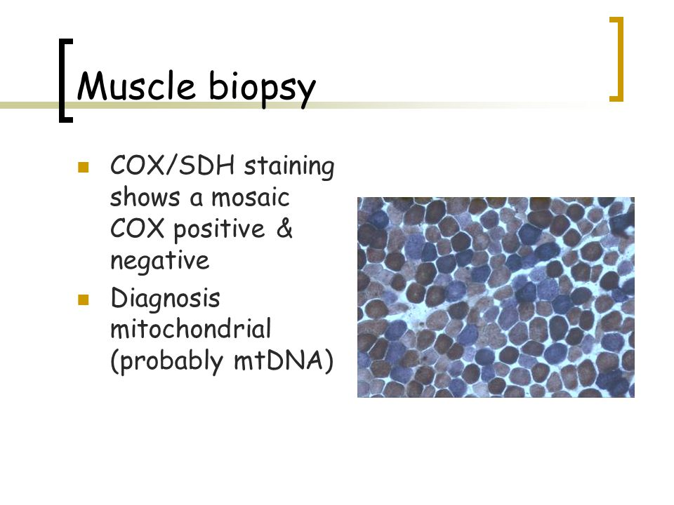 Muscle biopsy COX/SDH staining shows a mosaic COX positive & negative
