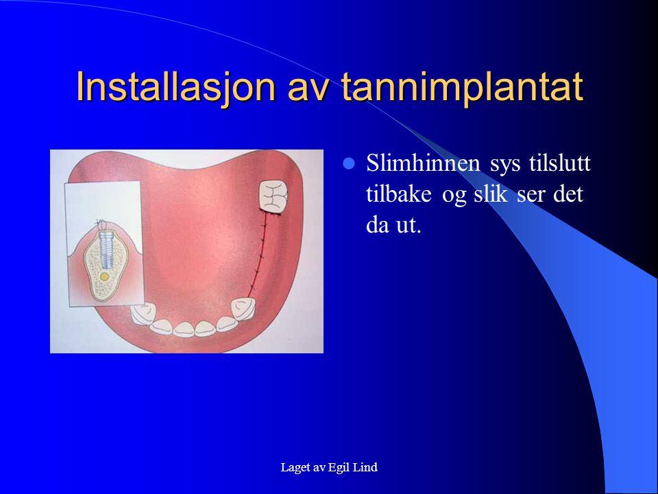 Installasjon av tannimplantat