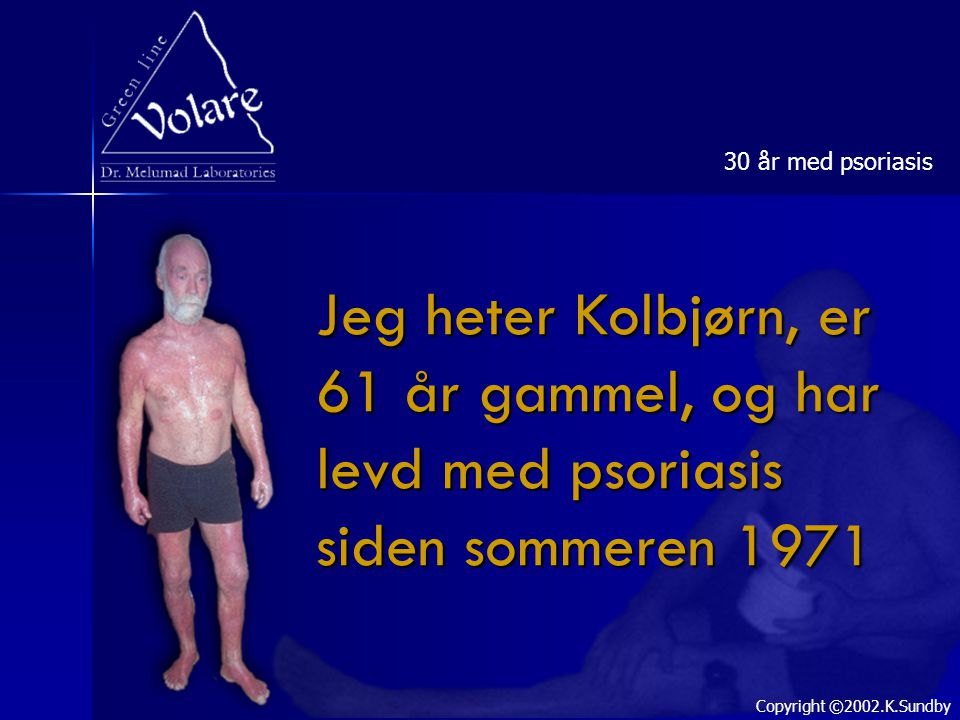 30 år med psoriasis Jeg heter Kolbjørn, er 61 år gammel, og har levd med psoriasis siden sommeren 1971.