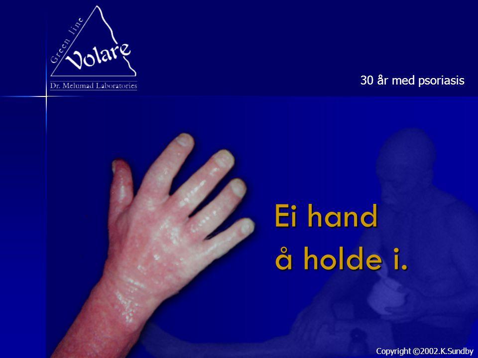 30 år med psoriasis Ei hand å holde i. Copyright ©2002.K.Sundby