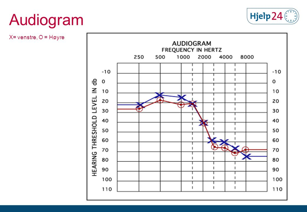 Audiogram X= venstre, O = Høyre