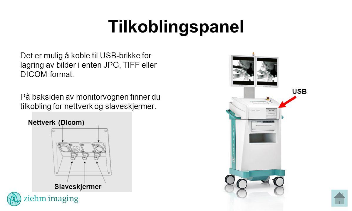 Tilkoblingspanel Det er mulig å koble til USB-brikke for lagring av bilder i enten JPG, TIFF eller DICOM-format.