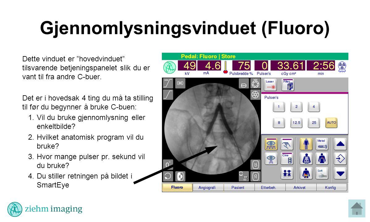 Gjennomlysningsvinduet (Fluoro)
