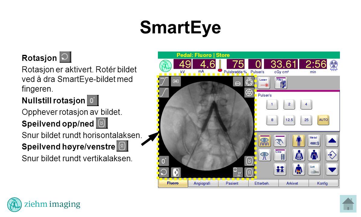 SmartEye Rotasjon. Rotasjon er aktivert. Rotér bildet ved å dra SmartEye-bildet med fingeren. Nullstill rotasjon.