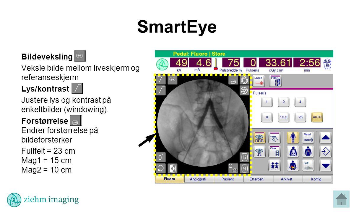 SmartEye Bildeveksling