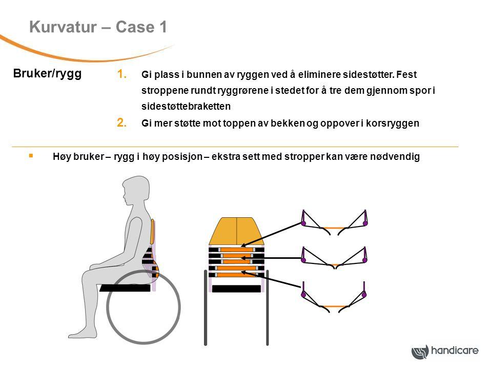 Kurvatur – Case 2 Bruker/rygg Utflatet kyfotisk rygg