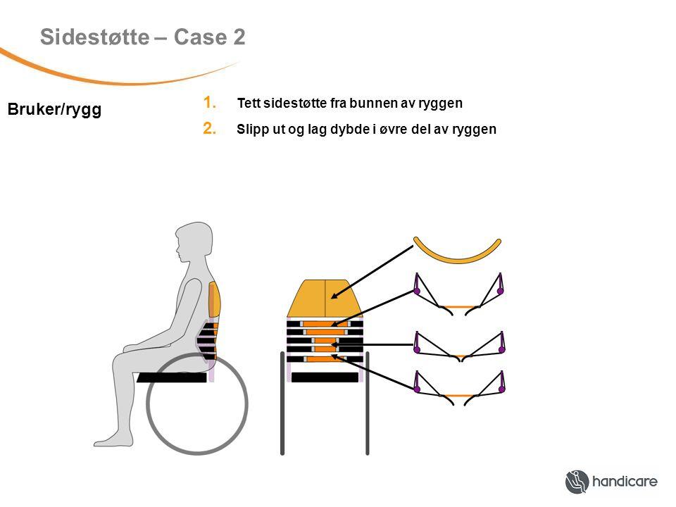 Asymmetri – Case 1 Bruker/rygg Skjevt bekken – jevn asymmetri