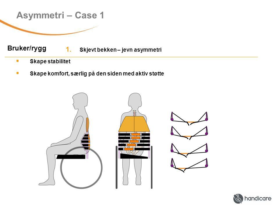 Asymmetri – Case 2 Bruker/rygg Rotert bekken og rygg