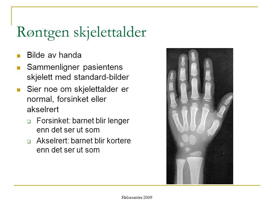 Røntgen skjelettalder