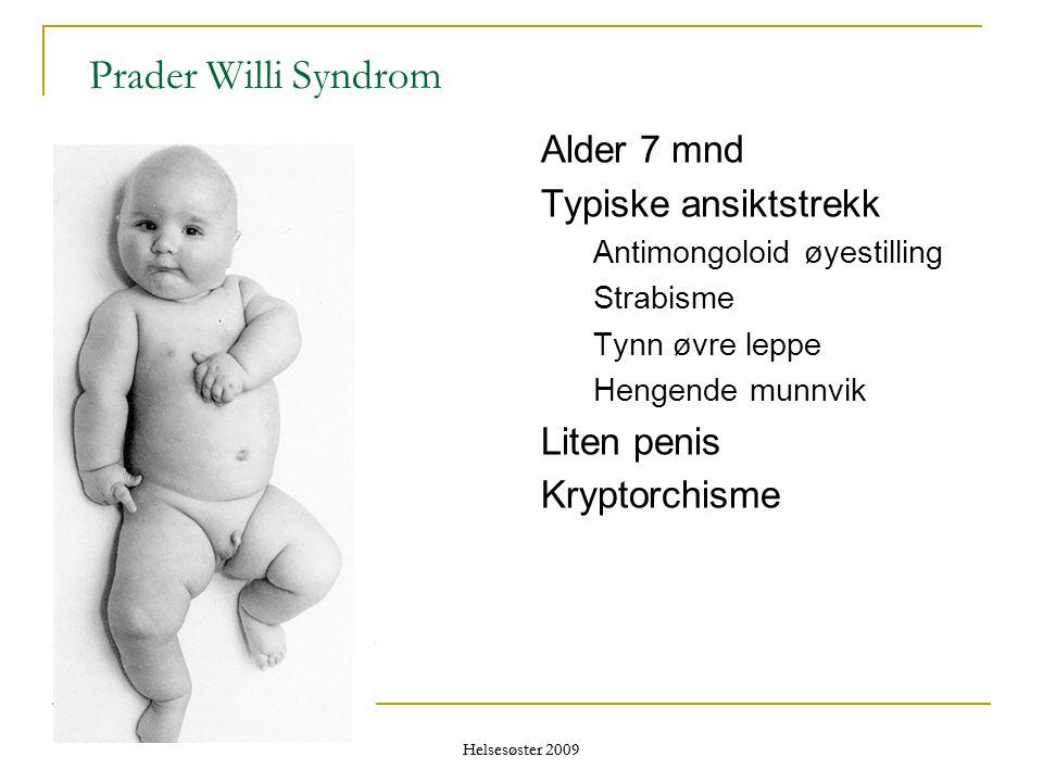 Prader Willi Syndrom Alder 7 mnd Typiske ansiktstrekk Liten penis