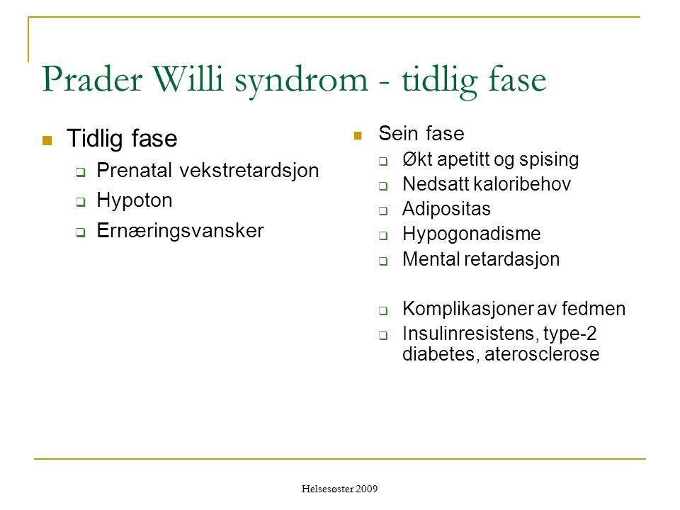 Prader Willi syndrom - tidlig fase